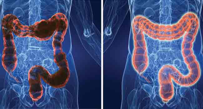 Image of the large intestine before and after Colonic Hydrotherapy
